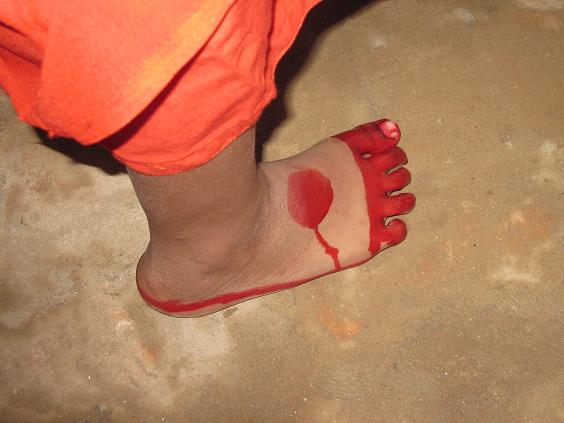 Udsmukket fod
